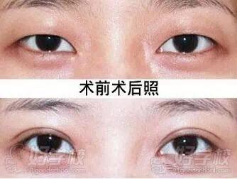 广州纳米无痕双眼皮强化班培训